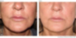 BeforeAfter2-Photorejuvenation-Courtesy-