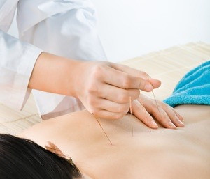 5 Awesome of Benefits of Acupuncture