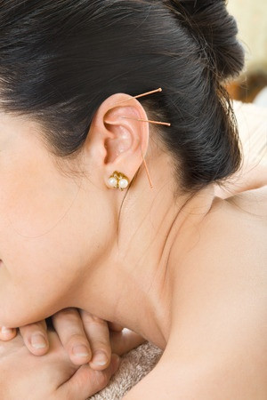 How does Dr. Panchal decide which acupuncture points to treat?