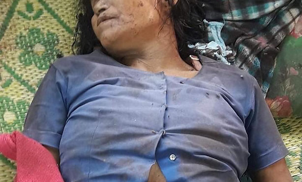 Burmese Army shot without reason_