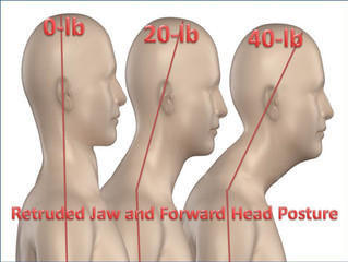 THE 40 POUND HEAD - DAMAGING EFFECTS OF FORWARD HEAD POSTURE