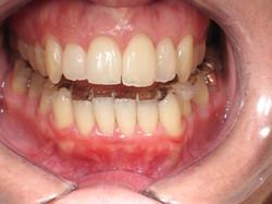 Anterior Open Bite Case