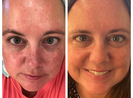 The Power of Medical Grade Skin Care