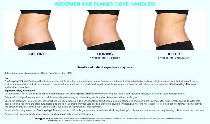 Abdomen_and_Flanks_Love_Handles_Female_edited.jpg