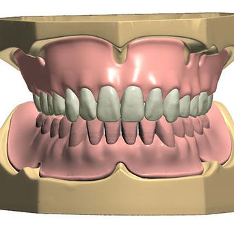 Denture Milling