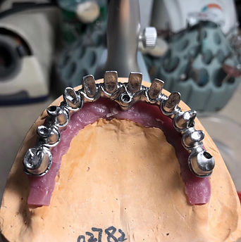 Milling Dental Frameworks