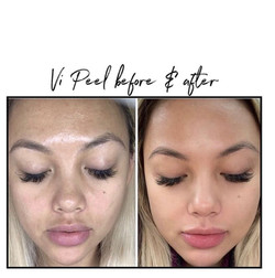 Zero Nine medical Vi Peel with Precision Plus for brightening of hyperpigmentation and melanoma