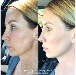 Zero Nine medical Vi Peel with Precision Plus for hyperpigmentation and evening skin tone