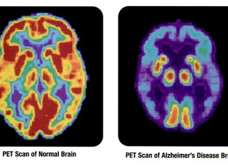 Alzheimer's diagnosis is easier, treating it, is not.