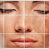 hyperpigmentation laser treatment SAVI Aesthetic