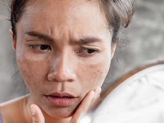 Why acne is itchy?