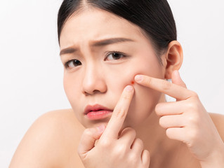 Will Acne Scars Go Away?