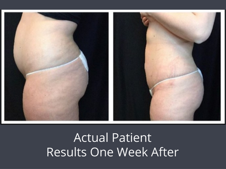 CoolSculpting® vs BeautiFill™ Laser Liposuction...Which Is Better?