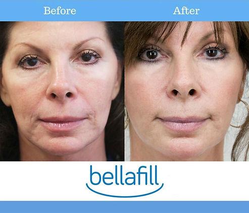 bellafill before after.jpg
