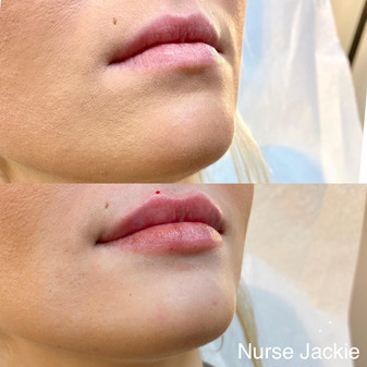 Lip Filler with Nurse Jackie