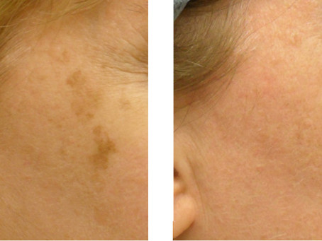 Removing Age Spots