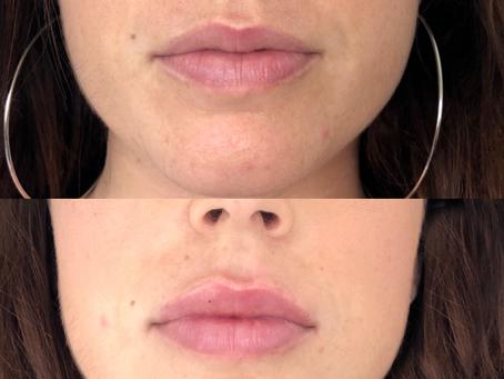 The Lip Flip vs Fillers