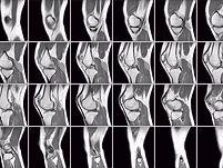 Сделать МРТ томографию суставов, костей, мышц в Москве