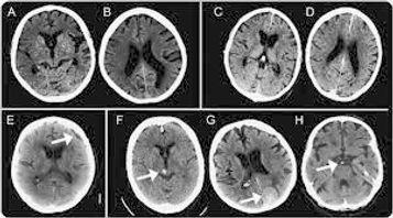 Сделать МРТ томографию головного мозга в Москве