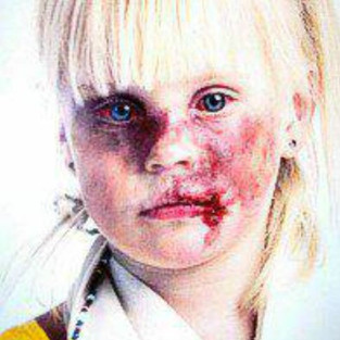 This picture was used in a campaign against child abuse overseas. It repeatedly gets used in white genocide propaganda quite often.
