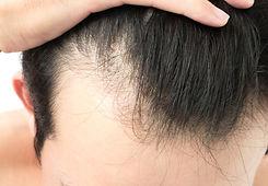 1-hair-loss-1.jpg