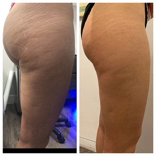 Before & After: Sculptra