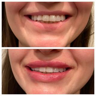 Before & After: Hyaluronic Acid Filler