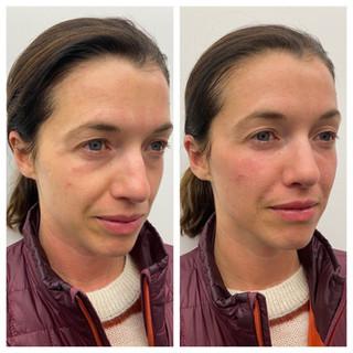 Before & After: Hyularonic Acid Filler