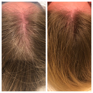 Before & After: PRP Hair Treatment