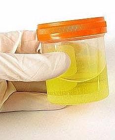 Progressive Diagnostics - Workplace Drug Testing - Detection of Synthetic Urine