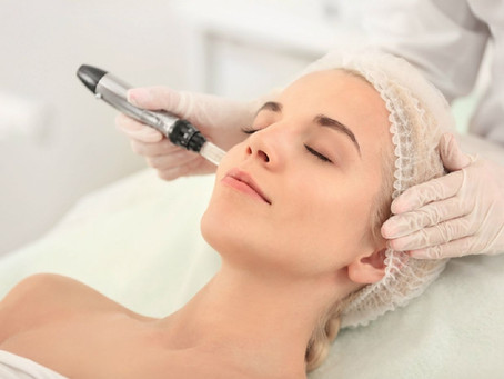 MicroNeedling - 8 things to know before trying it.....