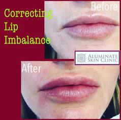 correctign lip inbalance