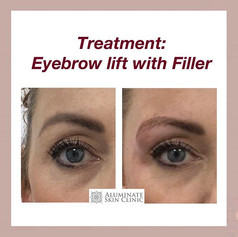 Brow lift with dermal filler