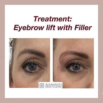 A brow Lift_🍁_Few people are aware what
