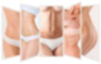 Ultrasound-Cavitation-treatment