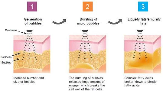 ultrasound-cavitation-process.jpg
