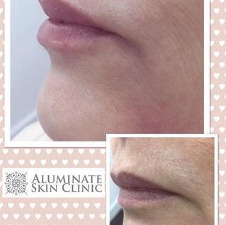 Correcting a lip imbalance is possible t