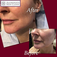 Jawline dermal filler