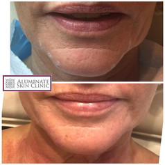 dermal filler to chin
