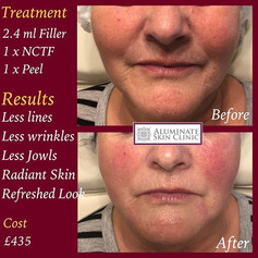 lower face rejuvenation
