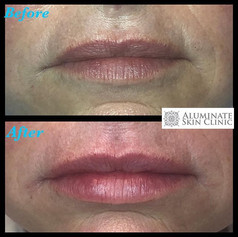 Aluminate_lips