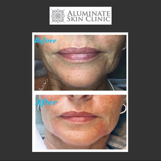 Treating the #chin & #marionettelines  r