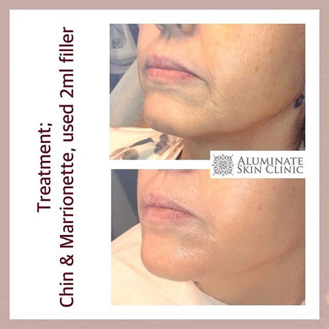 Jawline and chin filler