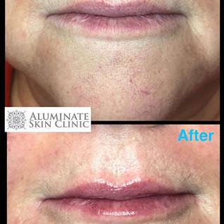 Love a natural lip enhancement 🌸_Oh, an