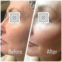Cheek_filler_aluminate_clinic