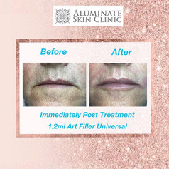 Lip Filler at aluminate clinic