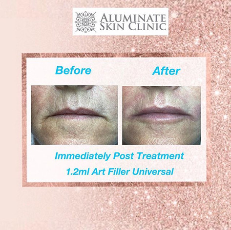 Lip Filler at aluminate clinic