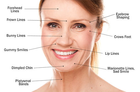 Botox Oswestry