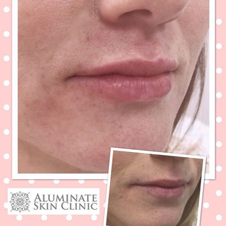 🌸 Balancing the Lips_💉 Instant Results