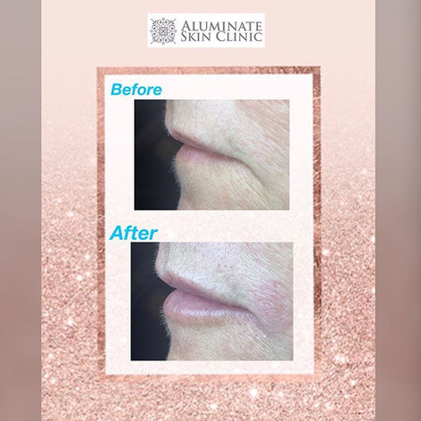 Lip filler aluminate clinic
